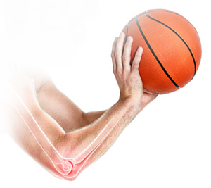 Thrower's Elbow